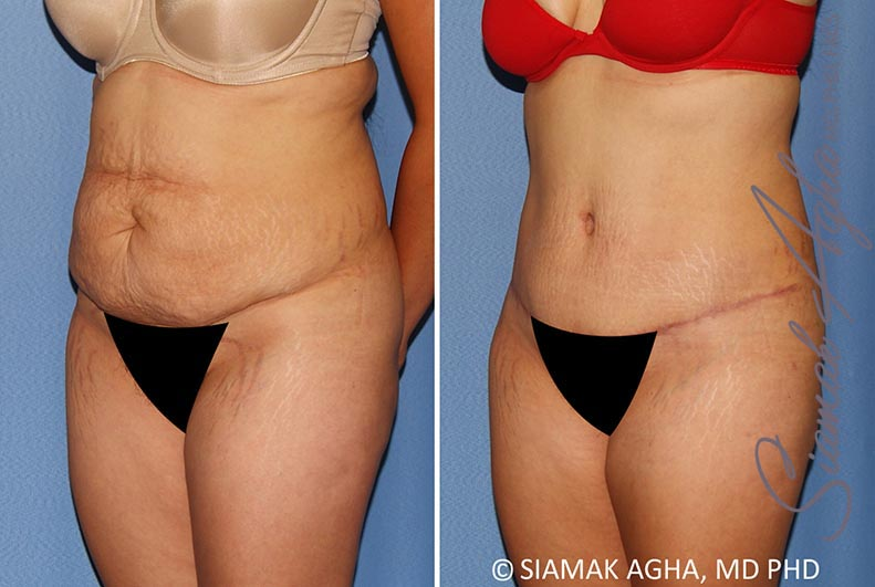 Orange County Newport Beach Tummy Tuck 34 Front Left Alt View