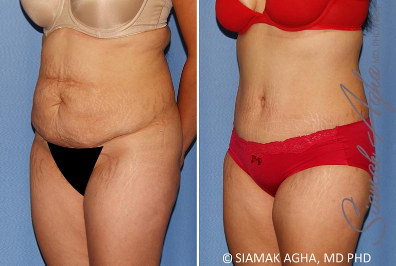 Orange County Newport Beach Tummy Tuck 34 Front Left View