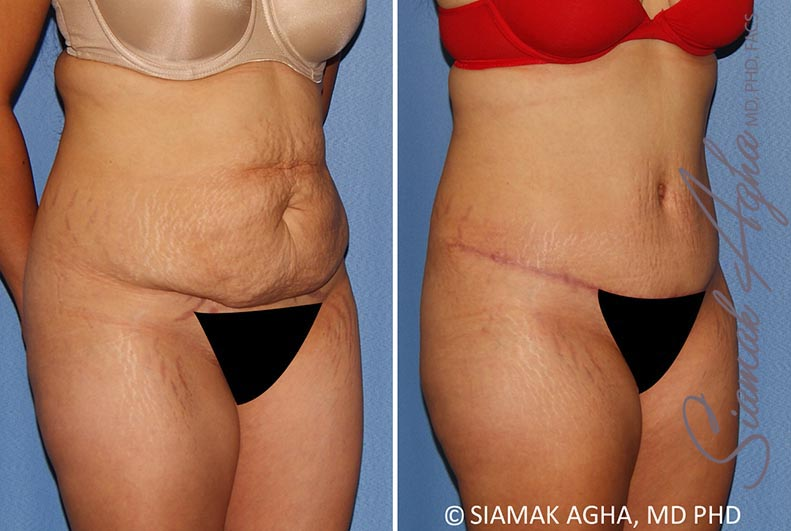 Orange County Newport Beach Tummy Tuck 34 Front Right Alt View