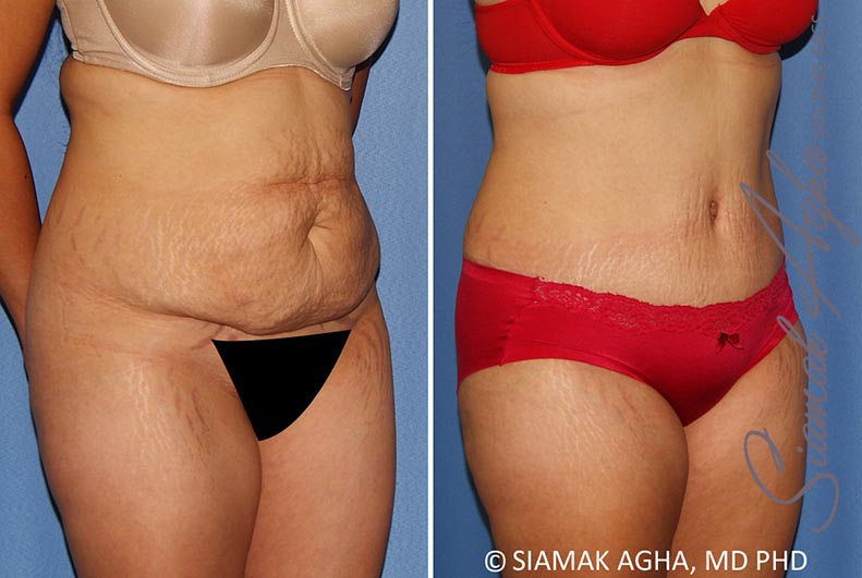 Orange County Newport Beach Tummy Tuck 34 Front Right View