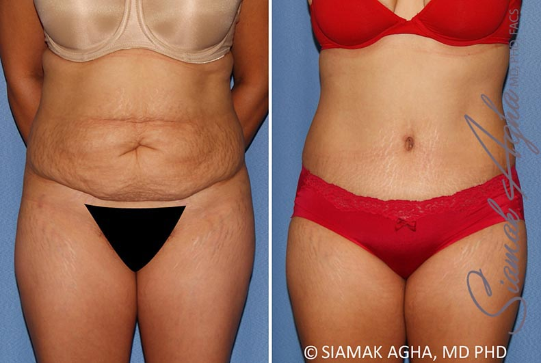 Orange County Newport Beach Tummy Tuck 34 Front View