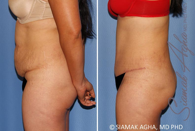 Orange County Newport Beach Tummy Tuck 34 Left Alt View