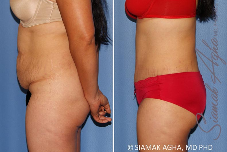 Orange County Newport Beach Tummy Tuck 34 Left View
