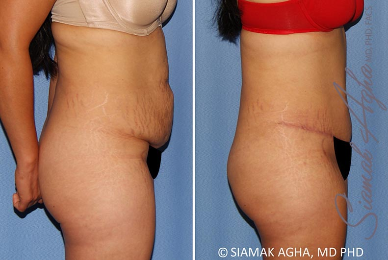 Orange County Newport Beach Tummy Tuck 34 Right Alt View