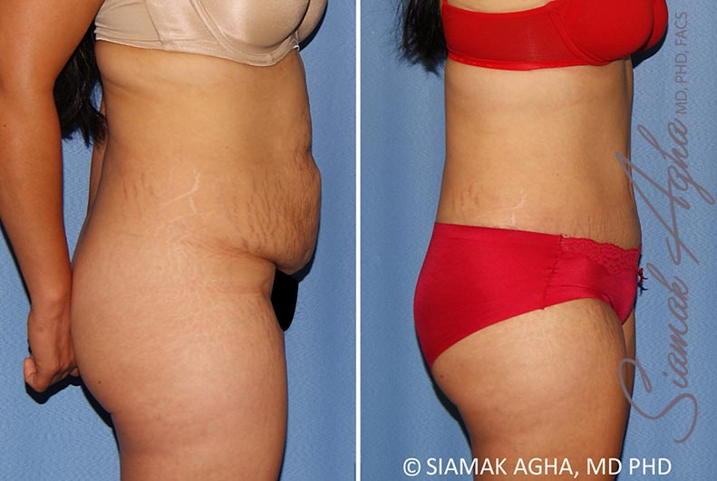 Orange County Newport Beach Tummy Tuck 34 Right View