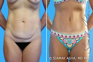 Orange County Newport Beach Tummy Tuck Patient 4