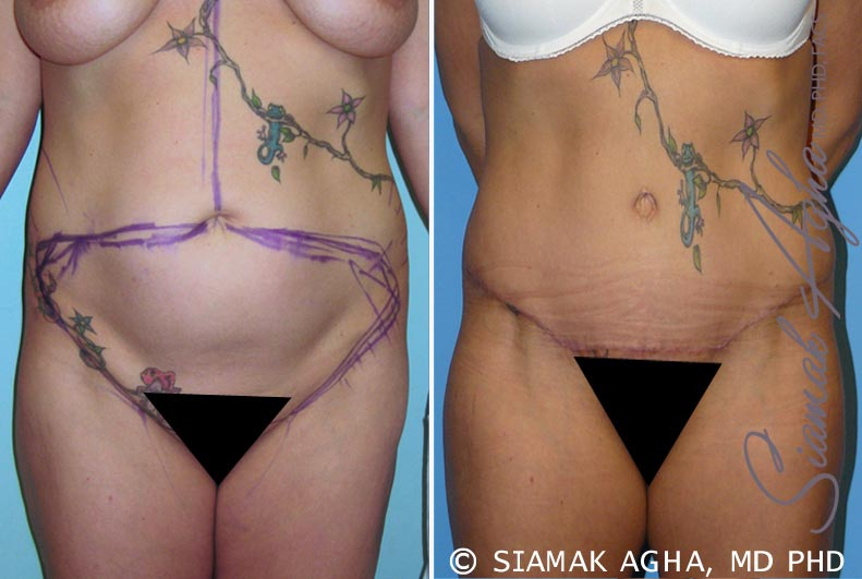 Orange County Newport Beach Tummy Tuck 6 Front View