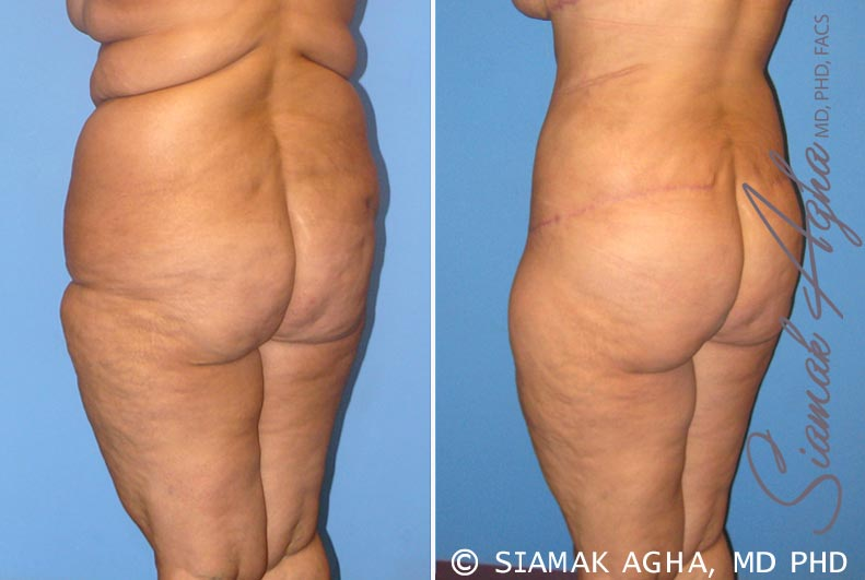 Orange County Newport Beach Tummy Tuck 7 Back Left View