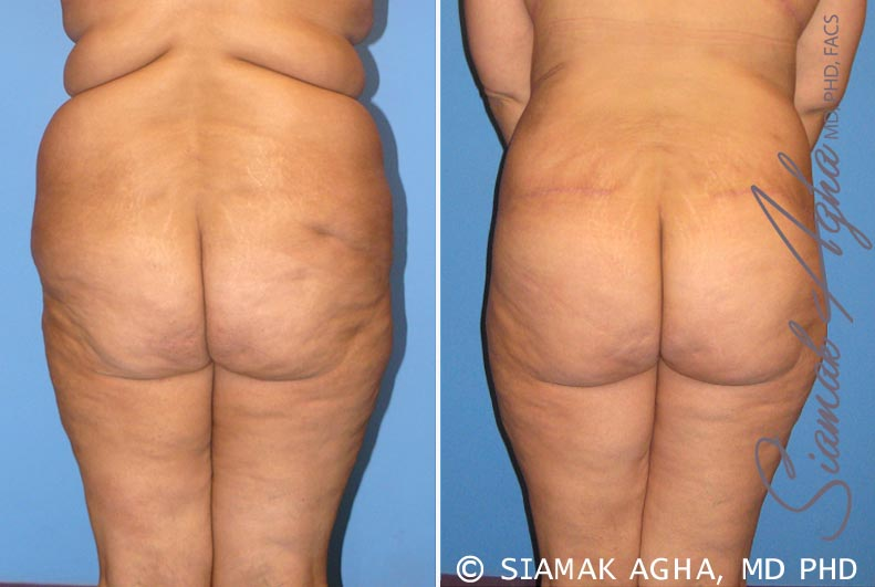 Orange County Newport Beach Tummy Tuck 7 Back View