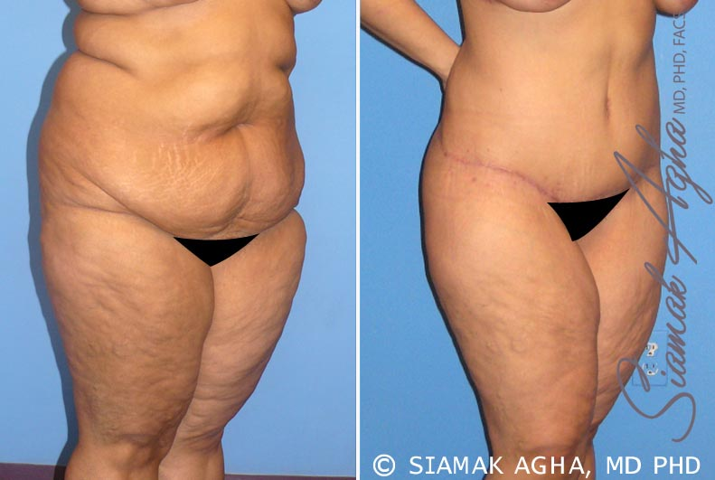 Orange County Newport Beach Tummy Tuck 7 Front Right View