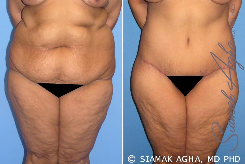 Orange County Newport Beach Tummy Tuck 7 Front View
