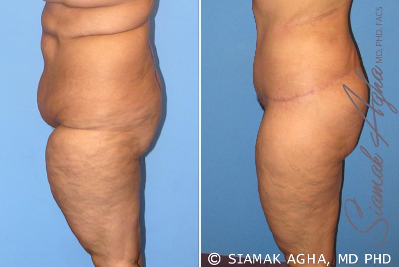 Orange County Newport Beach Tummy Tuck 7 Left View
