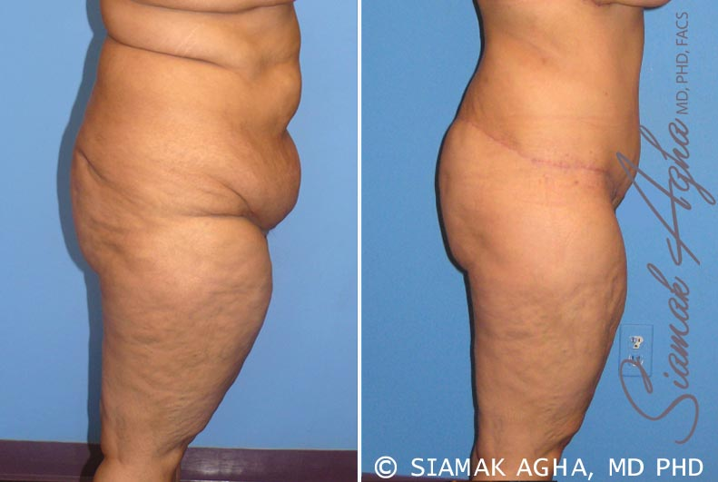 Orange County Newport Beach Tummy Tuck 7 Right View