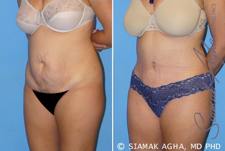 Orange County Newport Beach Tummy Tuck 8 Front Left View