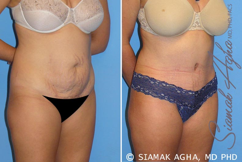 Orange County Newport Beach Tummy Tuck 8 Front Right View