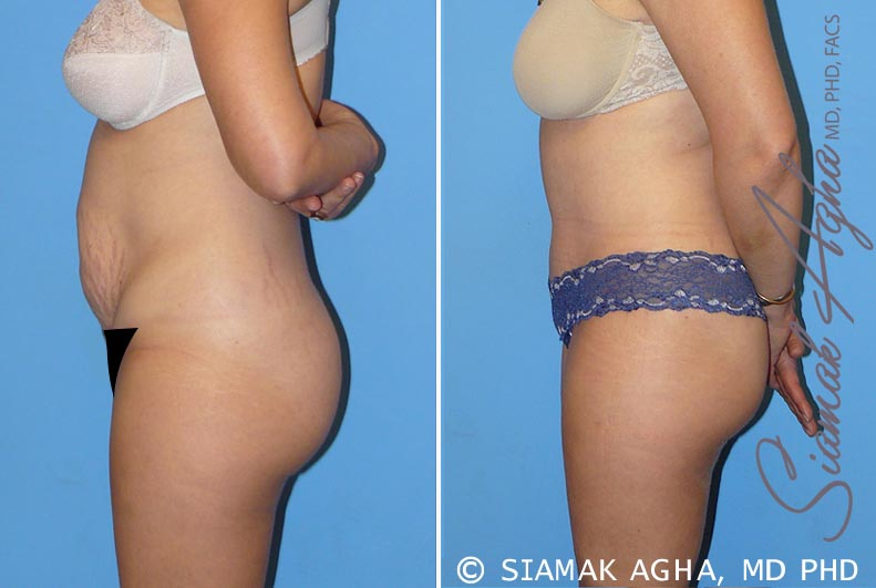 Orange County Newport Beach Tummy Tuck 8 Left View
