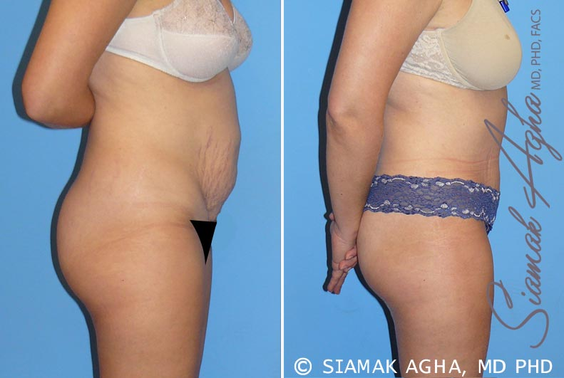 Orange County Newport Beach Tummy Tuck 8 Right View