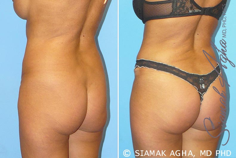 Orange County Newport Beach Tummy Tuck 9 Back Left View