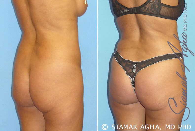 Orange County Newport Beach Tummy Tuck 9 Back Right View