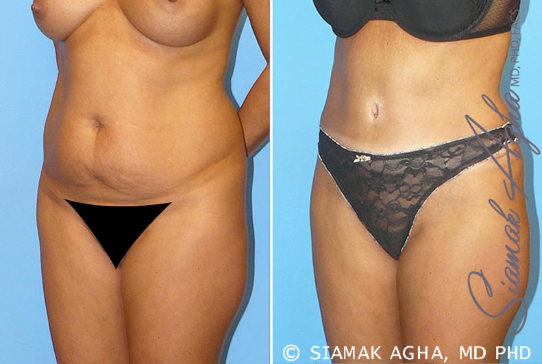 Orange County Newport Beach Tummy Tuck 9 Front Left View