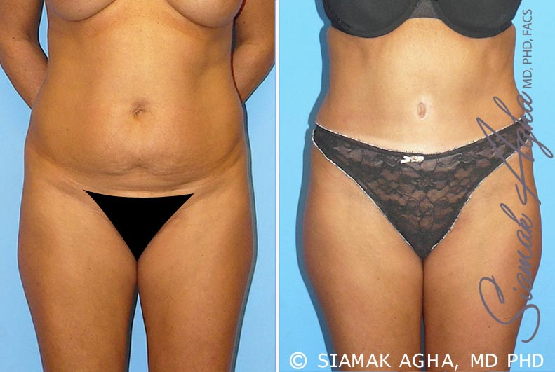 Orange County Newport Beach Tummy Tuck 9 Front View