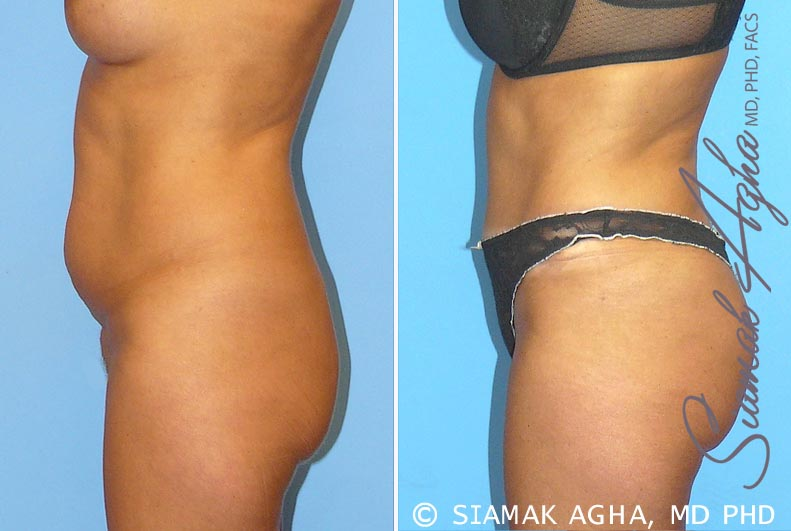 Orange County Newport Beach Tummy Tuck 9 Left View