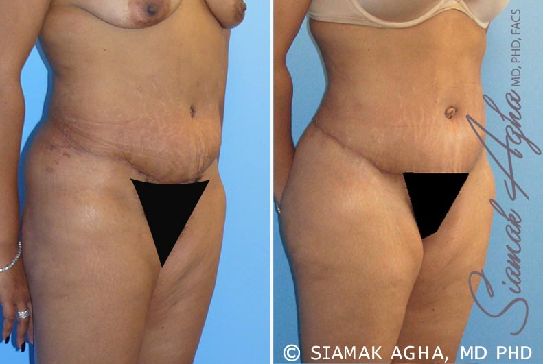 Orange County Newport Beach Tummy Tuck Revision 1 Front Right View