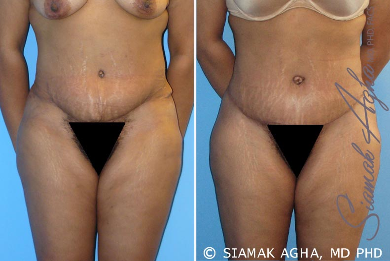 Orange County Newport Beach Tummy Tuck Revision Patients