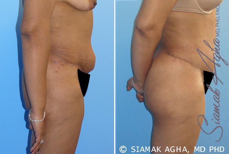 Orange County Newport Beach Tummy Tuck Revision 1 Right View
