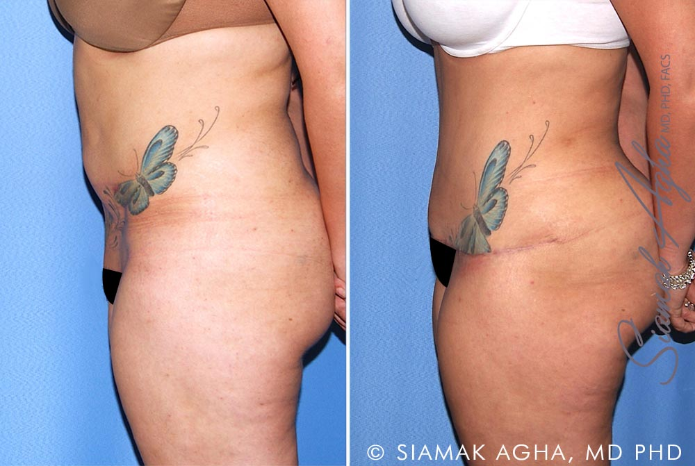 Orange County Newport Beach Tummy Tuck Revision 10 Left View