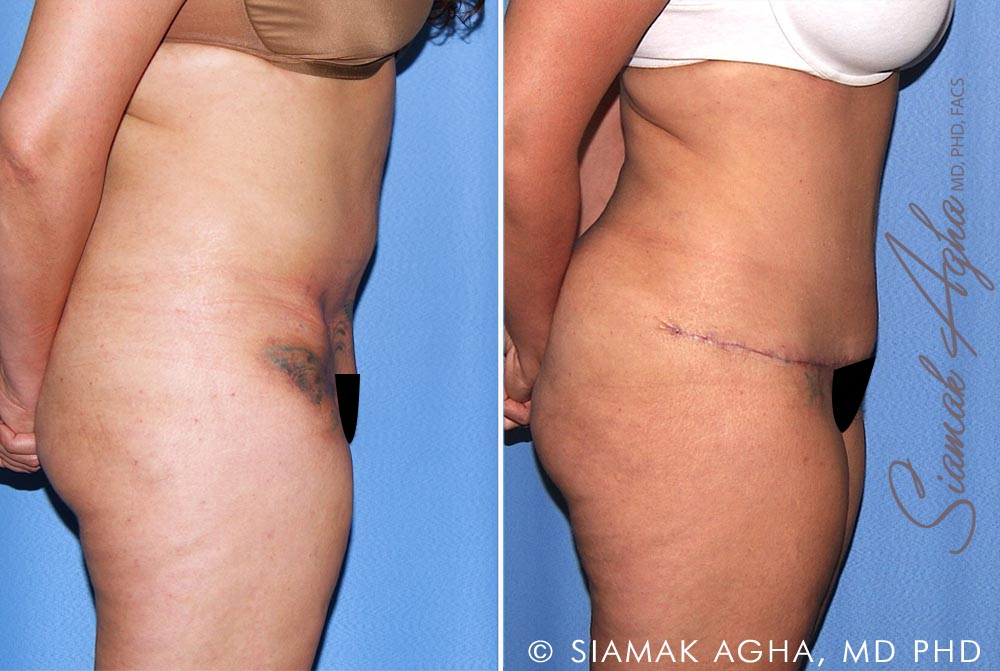 Orange County Newport Beach Tummy Tuck Revision 10 Right View