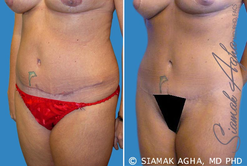Orange County Newport Beach Tummy Tuck Revision 2 Front Left View