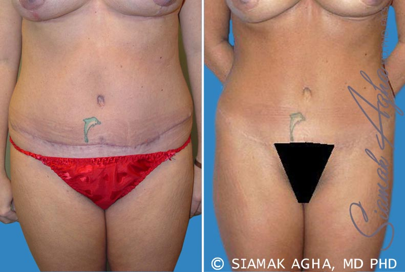 Orange County Newport Beach Tummy Tuck Revision 2 Front View