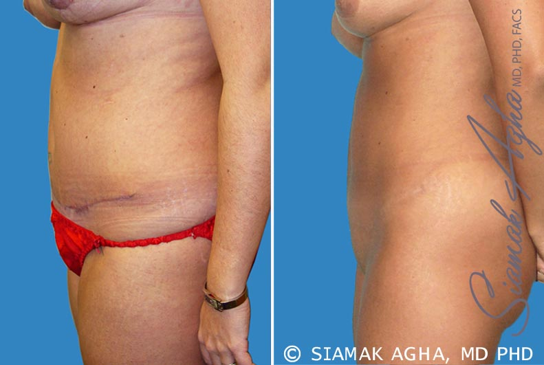 Orange County Newport Beach Tummy Tuck Revision 2 Left View