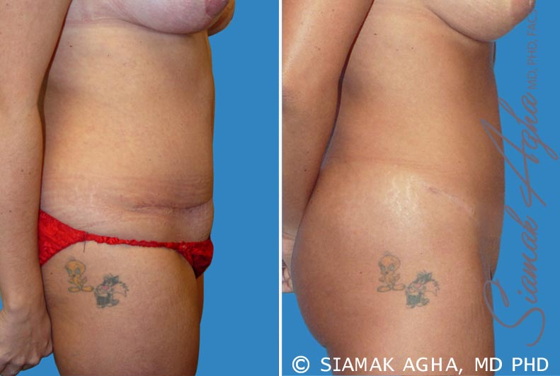 Orange County Newport Beach Tummy Tuck Revision 2 Right View