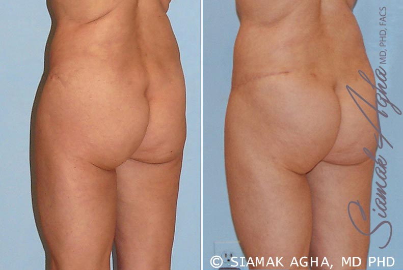 Orange County Newport Beach Tummy Tuck Revision 4 Back Left View