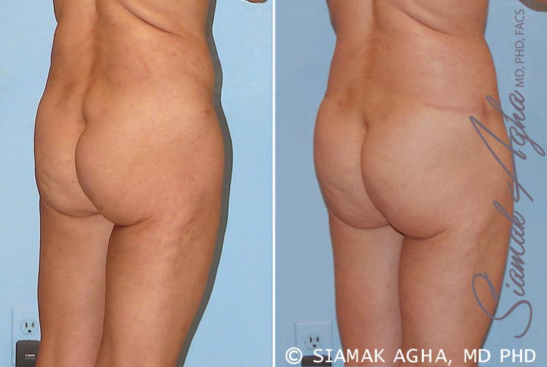 Orange County Newport Beach Tummy Tuck Revision 4 Back Right View
