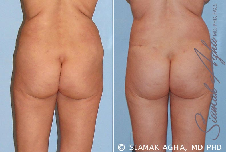 Orange County Newport Beach Tummy Tuck Revision 4 Back View