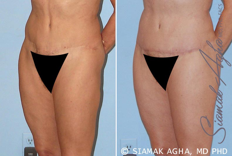 Orange County Newport Beach Tummy Tuck Revision 4 Front Left View