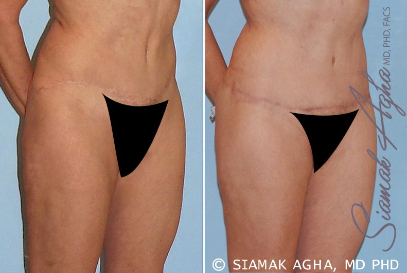 Orange County Newport Beach Tummy Tuck Revision 4 Front Right View