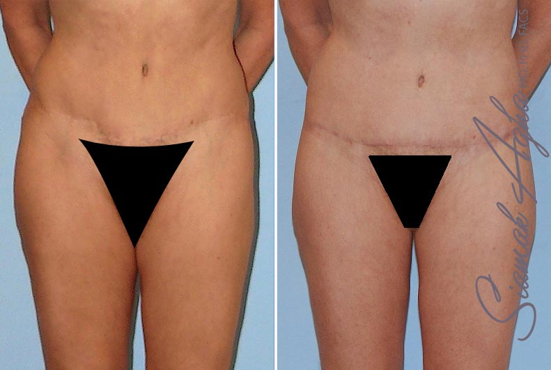Orange County Newport Beach Tummy Tuck Revision Patient 4