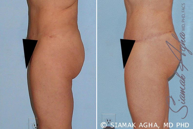 Orange County Newport Beach Tummy Tuck Revision 4 Left View