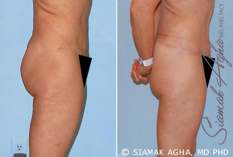 Orange County Newport Beach Tummy Tuck Revision 4 Right View