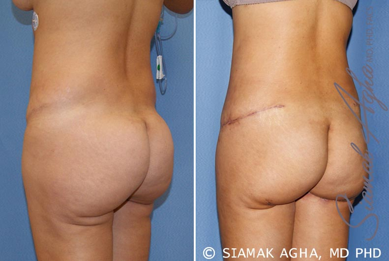 Orange County Newport Beach Tummy Tuck Revision 6 Back Left View