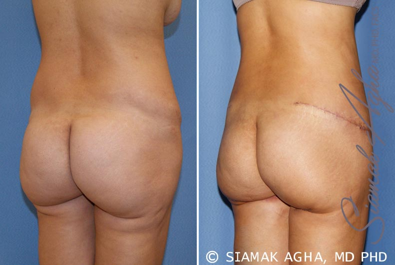 Orange County Newport Beach Tummy Tuck Revision 6 Back Right View