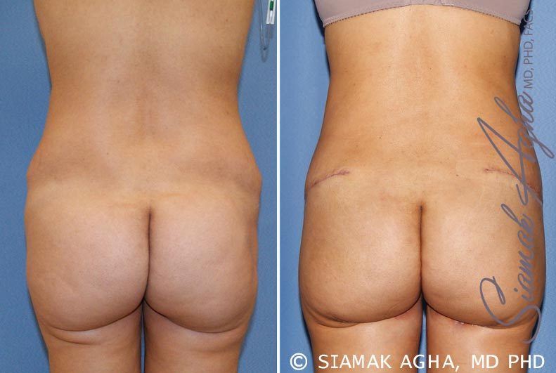 Orange County Newport Beach Tummy Tuck Revision 6 Back View
