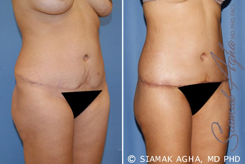 Orange County Newport Beach Tummy Tuck Revision 6 Front Right View