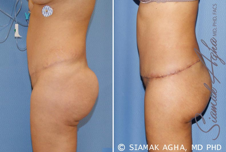 Orange County Newport Beach Tummy Tuck Revision 6 Left View