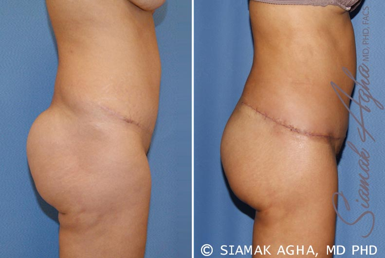 Orange County Newport Beach Tummy Tuck Revision 6 Right View