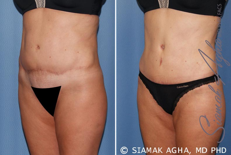 Orange County Newport Beach Tummy Tuck Revision 7 Front Left View